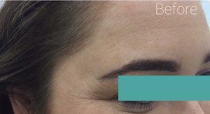 anti wrinkle treatment before image