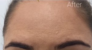 anti wrinkle treatment after image