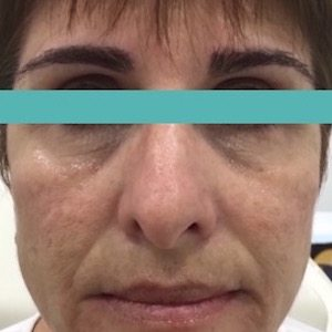 dermastamp image before procedure