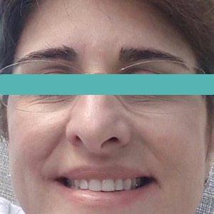 dermastamp image after procedure