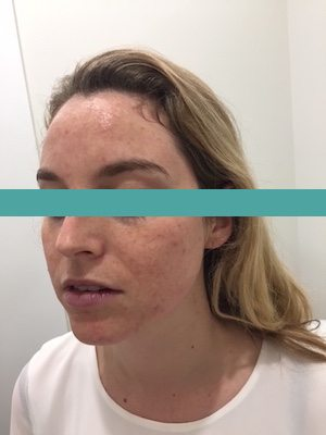 microdermabrasion before image