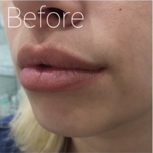 lip image before