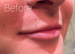 lip augmentation before image