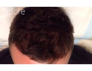 PRP hair loss treatment before image