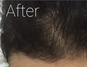 PRP hair loss treatment after image