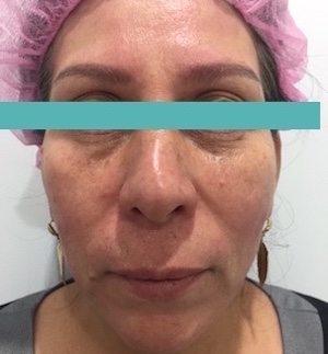 ultrasonic facial after image