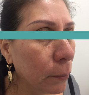 ultrasonic facial before image