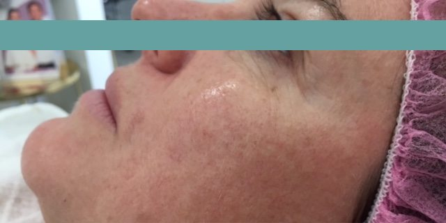 pigmentation removal before image