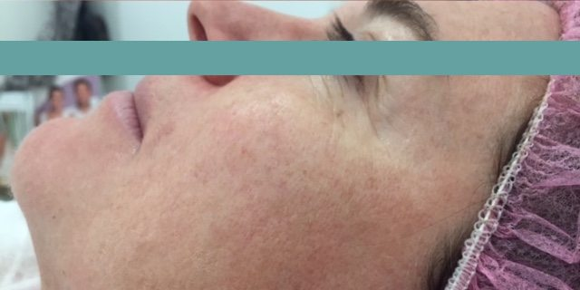 pigmentation removal after image