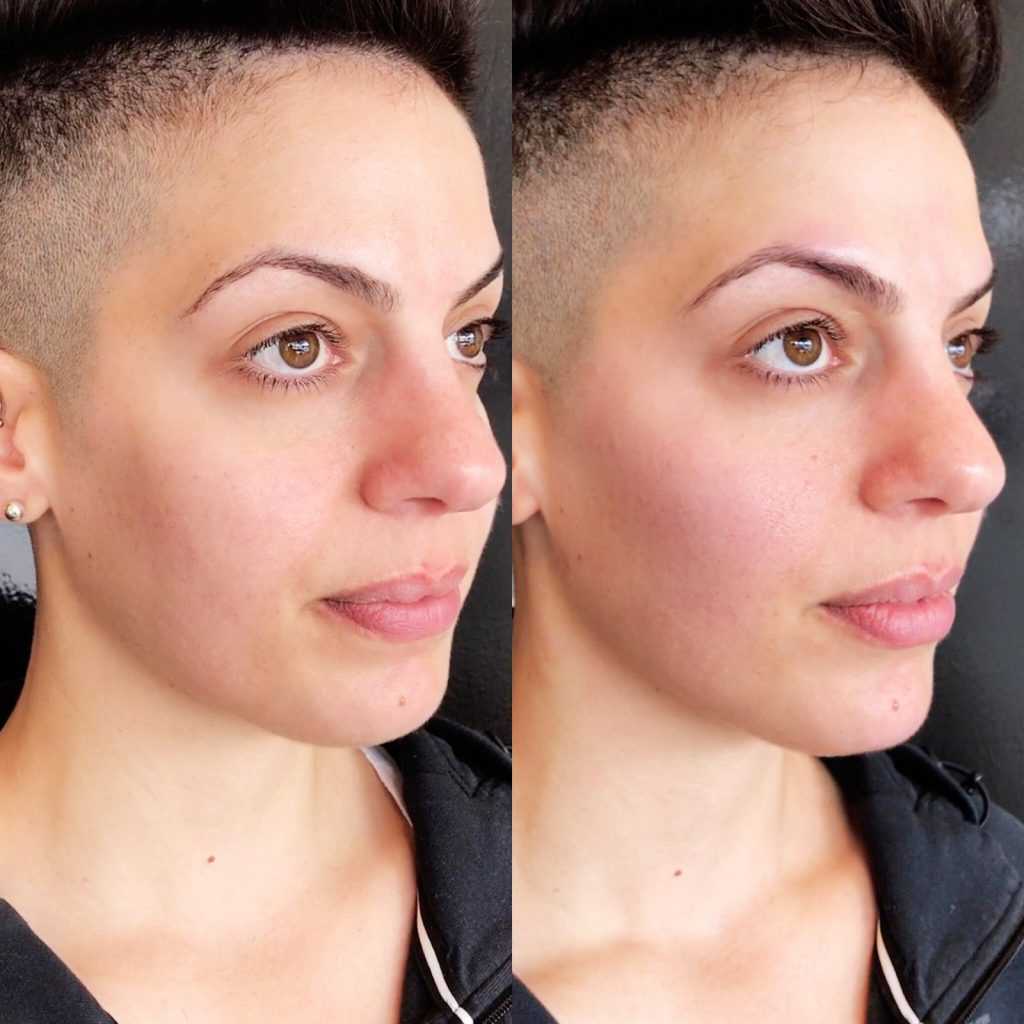 Before and after image of woman with cheek fillers