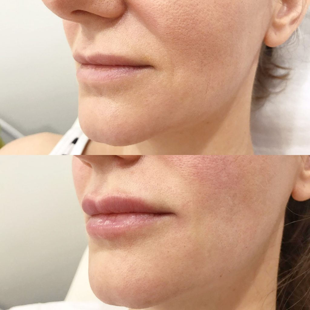 Dermal Filler on lips before and after