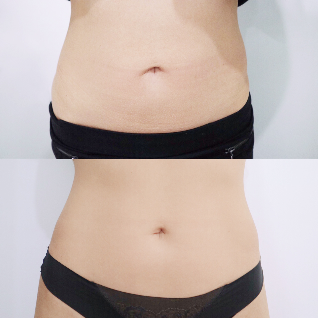 Stomach Tightening Before and After